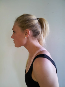 Woman with head forward posture