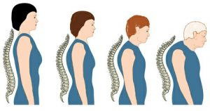 Head forward posture getting progressively worse at 4 ages of woman's adult life